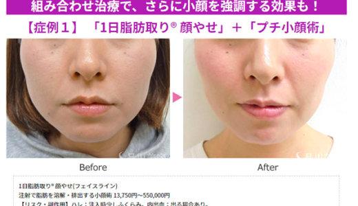 1日脂肪取りで最短で顔やせ!二重あごも解消する小顔注射の効果が凄い!