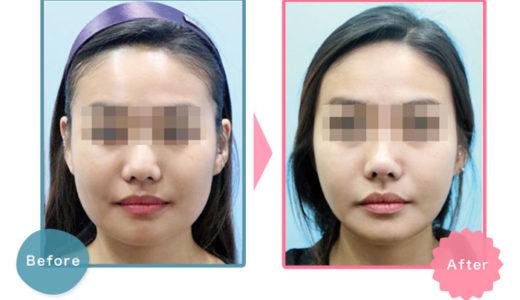 BNLS注射(脂肪溶解注射)が安い美容クリニック!顔瘦せ注射BNSLアルティメットのおすすめは?